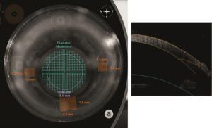 Catalys Precision Laser