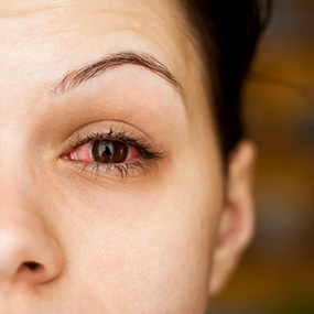 Eye allergy:  Spring Catarrh (Warm Weather conjunctiva)