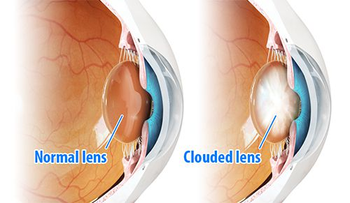 WHAT CAUSES CATARACT ?