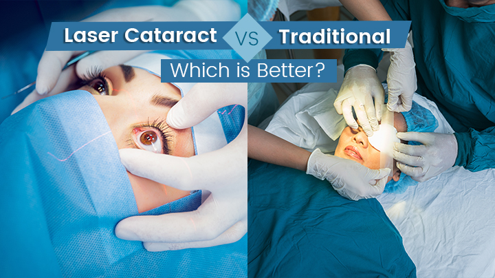 Laser Cataract vs Traditional: Which is Better