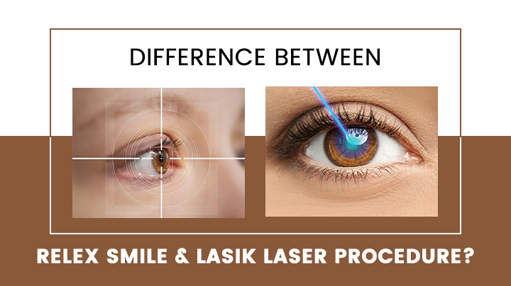 Difference Between ReLEx SMILE & LASIK Laser Procedure