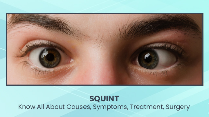 Squint Eyes: Know All About Causes, Symptoms, Treatment, Surgery