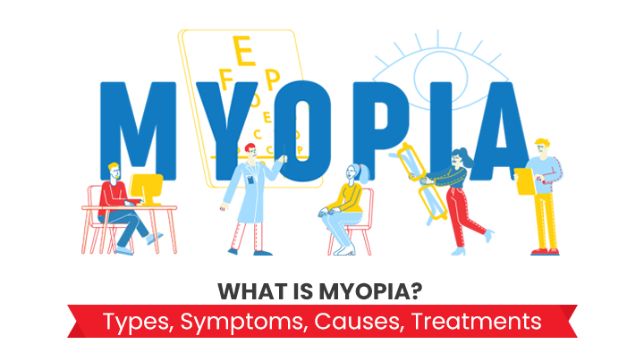 What Is Myopia? Learn Its Types, Symptoms, Causes & Treatments
