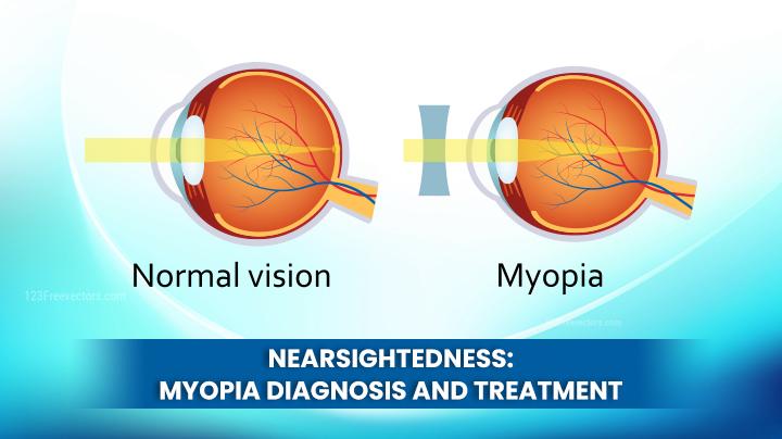 Nearsightedness - Myopia Diagnosis And Treatment