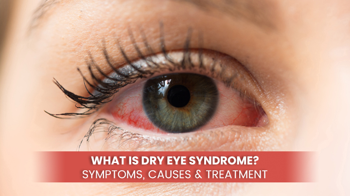 What is Dry Eye Syndrome - Symptoms, Causes & Treatment