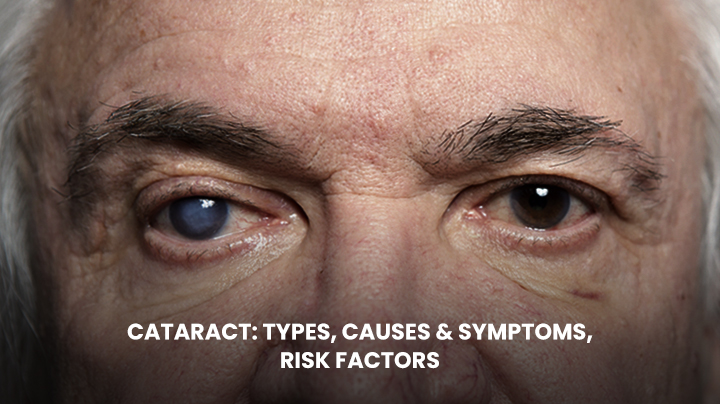 Cataract Types, Causes, Symptoms and Risk Factors