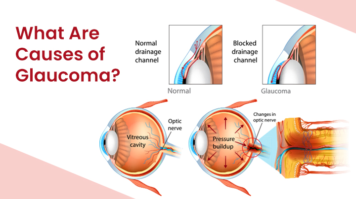 What Are The Causes Of Glaucoma