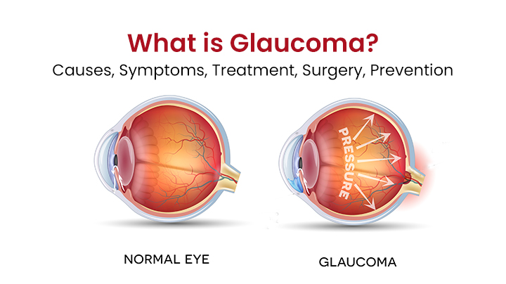 What Is Glaucoma - Causes, Symptoms, Treatment, Surgery & Prevention