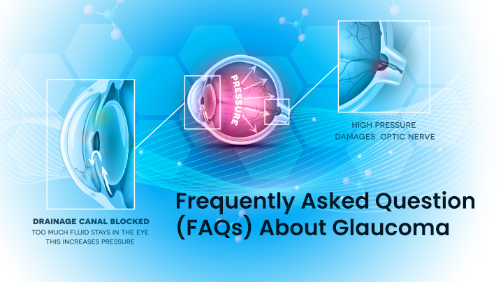 Frequently Asked Question - FAQs About Glaucoma
