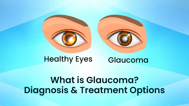 Glaucoma - Diagnosis And Treatment Options